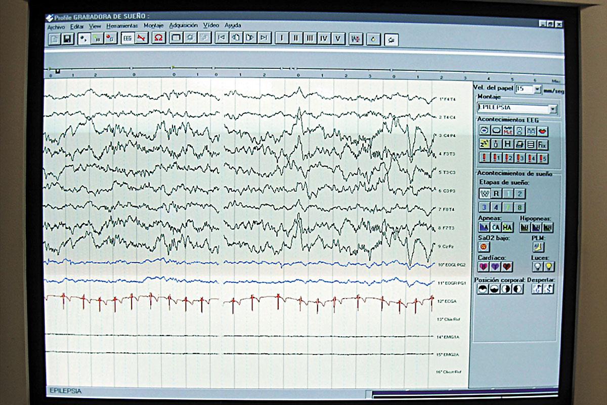 Activitat elèctrica cerebral