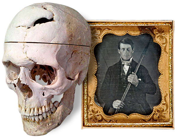 phineas gage essay -phrenology: the science of the mind an undergraduate essay by tammy  lechner (2000)  -see malcom macmillan's website on phineas gage see also .