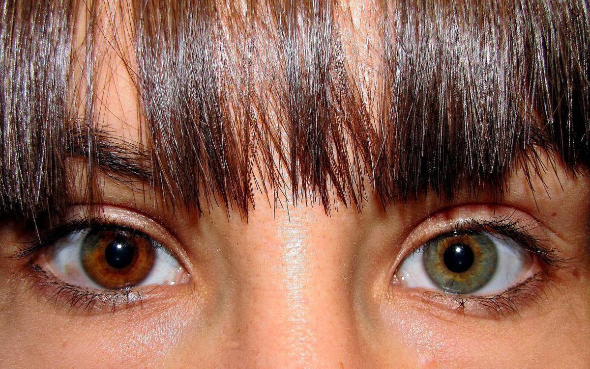 iris diferent color